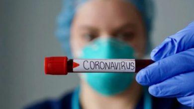 Photo of Як хронічні захворювання впливають на перебіг COVID-19: відповідь експерта
