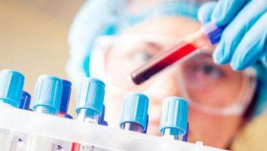 Photo of Загальний аналіз крові: які показники вважаються нормою
