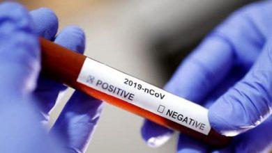 Photo of Вчені з Гонконгу підтвердили перший випадок повторного зараження коронавірусом