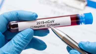 Photo of Вчені довели, що коронавірус на 100% передається повітряним шляхом