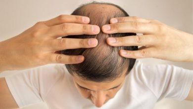 Photo of Через коронавірус у людей уже почало випадати волосся
