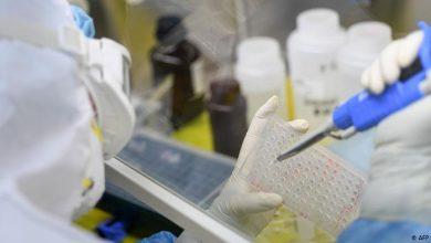Photo of Німецькі вчені з'ясували, кому загрожує важка форма коронавірусу