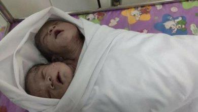 Photo of У М'янмі народилася здорова двоголова дитина