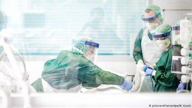 Photo of Британські вчені виявили нові ускладнення від коронавірусу