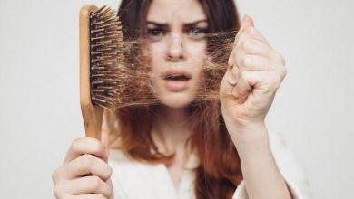 Photo of Знайдено спосіб зупинити процес випадіння волосся