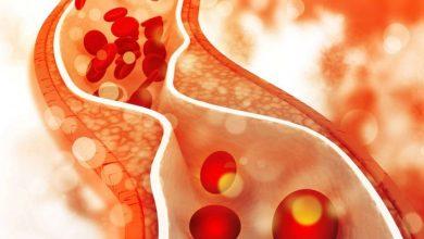 Photo of Вчені повідомили – що провокує ризик важкого захворювання на COVID-19